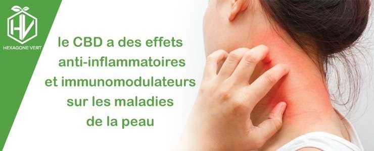 Le CBD a des effets anti-inflammatoires sur les maladies de peau