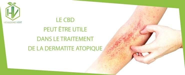 CBD dermatite atopique