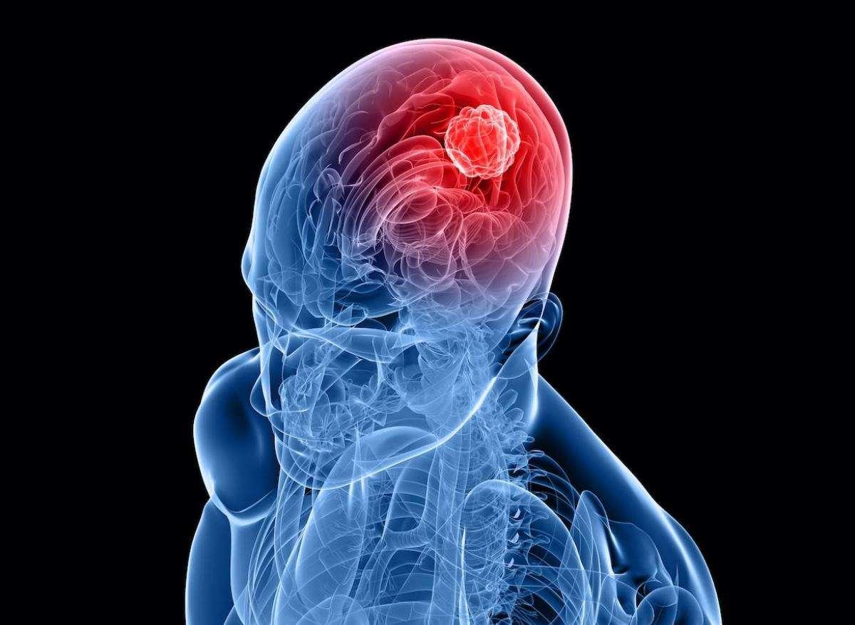 cannabis cancer cerveau